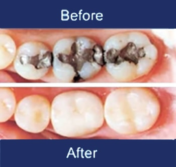 Fillings Before and After in Saint-Dorothée, Laval