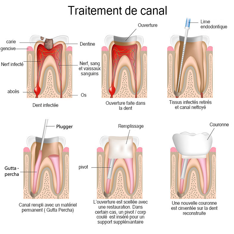 Root Canals in Saint-Dorothee, Laval